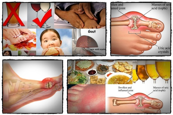 how to get rid of gout pain instantly